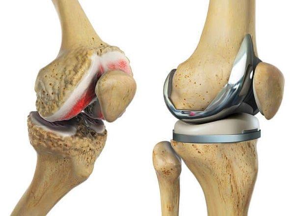 Artroplastia do joelho, como é? - Mais Idade